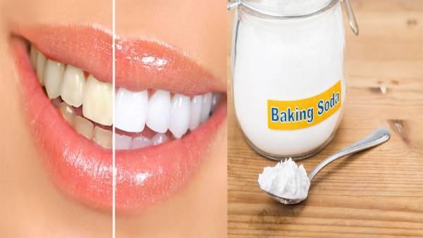Làm trắng răng bằng baking soda có hại không?